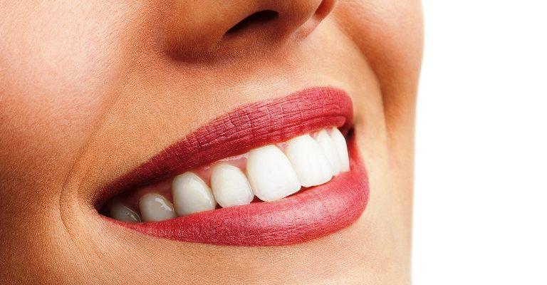 Bu besinler dişleri güçlendiriyor